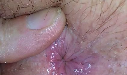 Wifes hairy arsehole waiting for a rimming